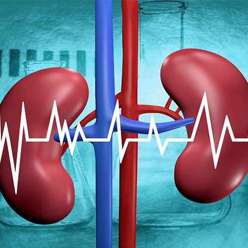 chronic-kidney-diseases-kidney-stones-removal-clinic