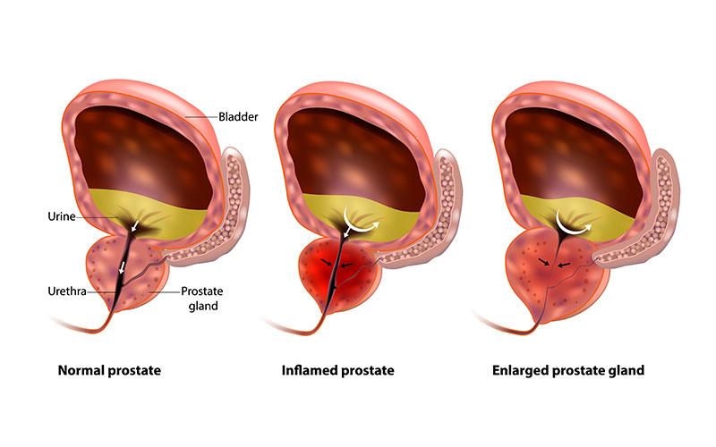 enlarged-prostate-treatment-chennai