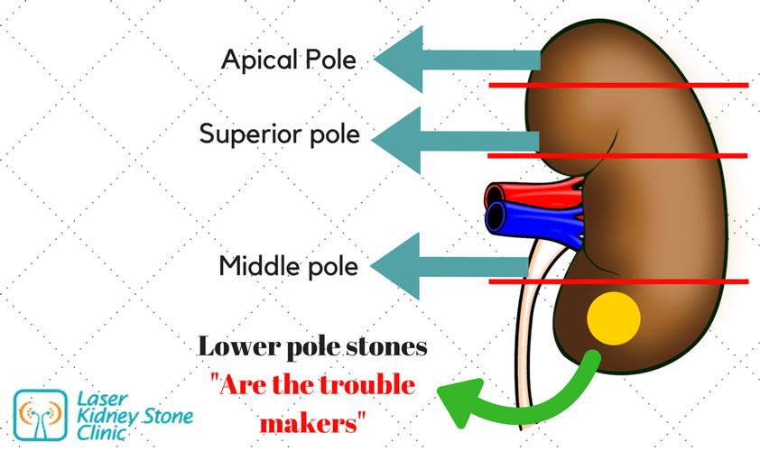 poles-in-kidneys-kidney-stones-clinic-chennai_